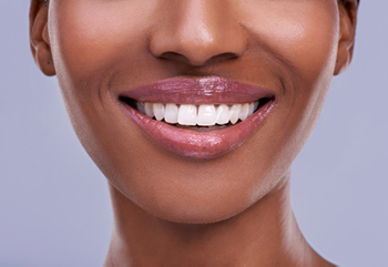 A woman smiling after he microsurgery treatment at Oregon Periodontics, P.C.