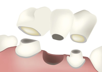 Dental Bridge diagram  at Oregon Periodontics, P.C.
