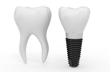 Dental Implant and molar side by side at Oregon Periodontics, P.C.