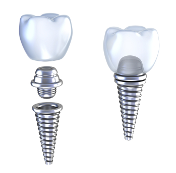 Diagram of dental Implants by dentist in Portland, OR.