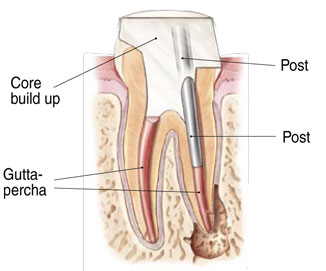 Diagram of a tooth after a root canal treatment at Oregon Periodontics, P.C.