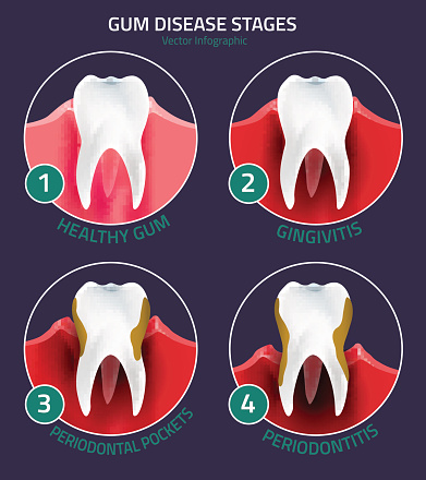 Diagram of stages of gum disease at Oregon Periodontics, P.C.
