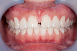An image of gapped teeth with excess gum tissue at Oregon Periodontics, P.C.