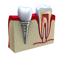 A dental implant model at Oregon Periodontics, P.C.